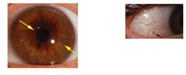 טיפול במיגרנה צילום כבד | טיפול במיגרנה באמצעות אבחון בגלגל העין