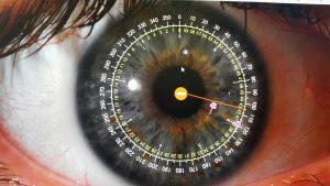 אבחון בגלגל העין
