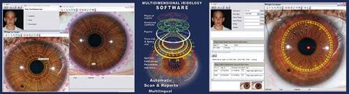 התוכנה לאירידולוגיה